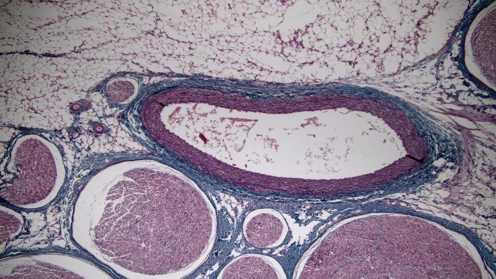 TC_Artery Nerve bundles