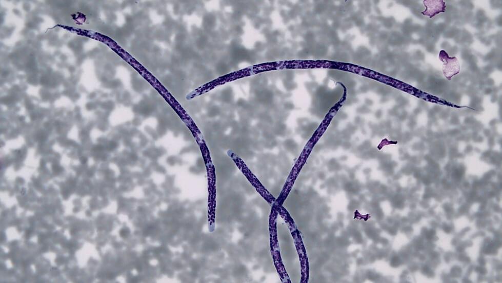 TC_Microfiliaria