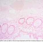 FMS-1-20X-Argentaffin-cells-fontana-masson-stain-kit